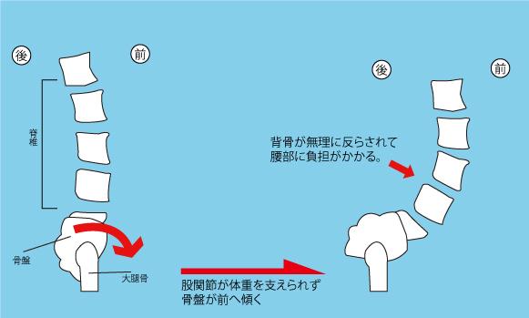 股関節と腰痛