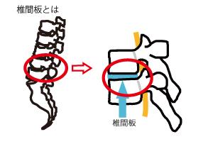 椎間板 説明