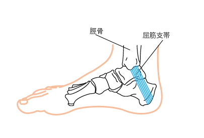 足根管症候群