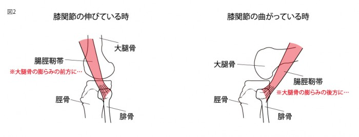 腸脛靭帯2