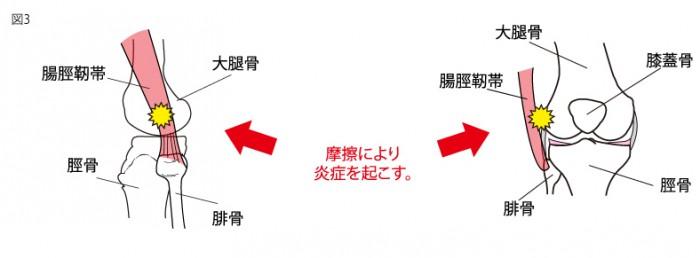 腸脛靭帯3