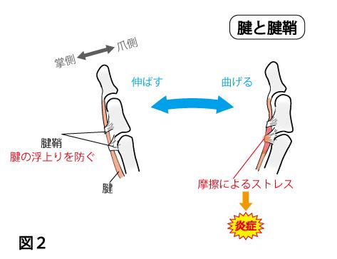 「腱鞘炎 説明 図」の画像検索結果
