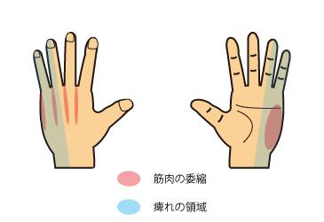 肘部管syn