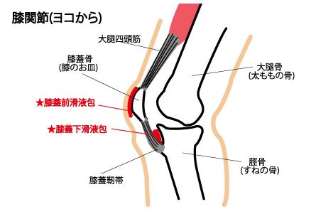膝 滑液包炎