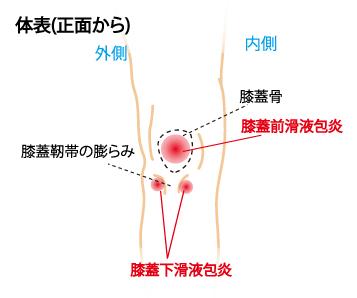 膝 滑液包炎-体表