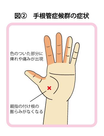 手根管 症状