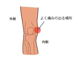 内側側副靱帯 痛みの場所