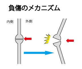 内側側副靱帯 受傷メカニズム