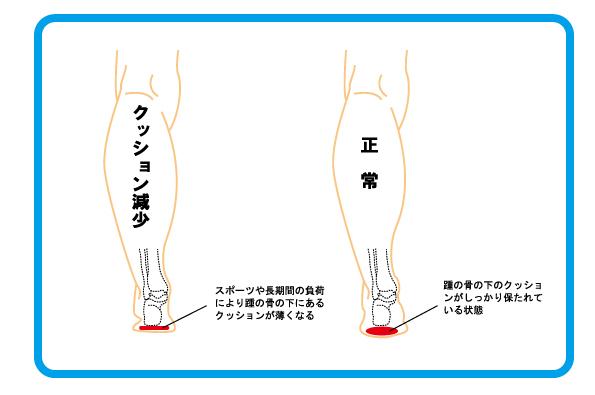 踵骨棘 2