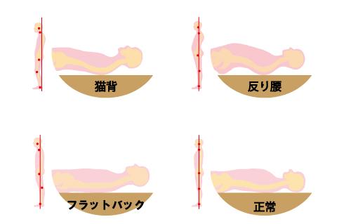 枕-姿勢との関係